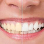 Simple Ways to Naturally Whiten Your Teeth at Home
