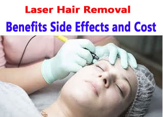 Laser Hair Removal Benefits Side Effects and Cost