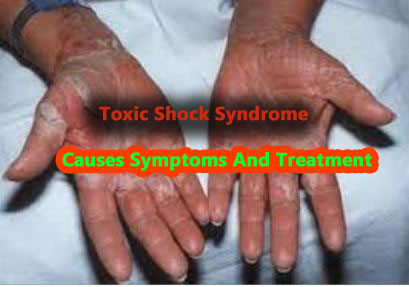 Toxic shock syndrome causes symptoms and treatment