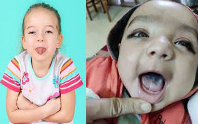 Why Do Babies and Children Get Black Tongues